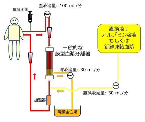 血漿交換の回路例